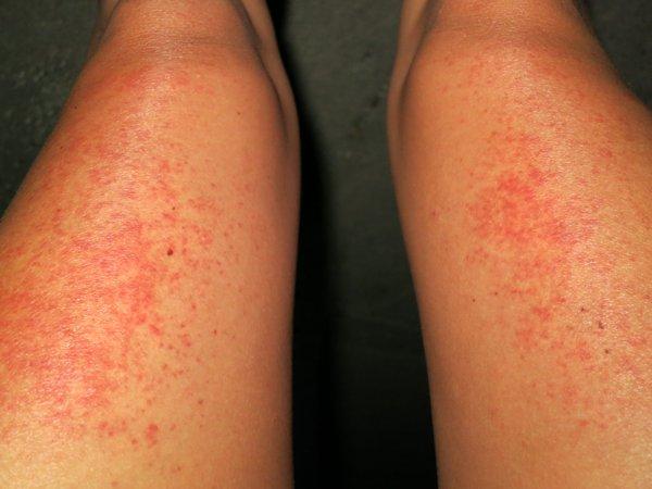 Heat rash?