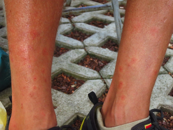 My legs ravaged by flies and mosquitoes